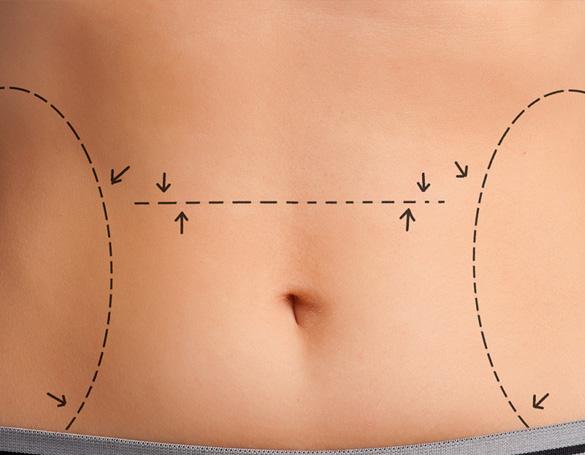 Cirurgia de Abdômen - Abdominoplastia (Dermolipectomia) em Brasília