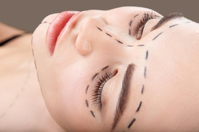Cirurgia de Face em Brasília